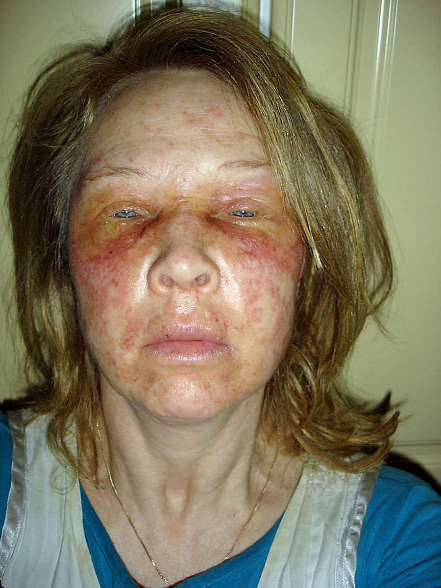rödflammig på halsen